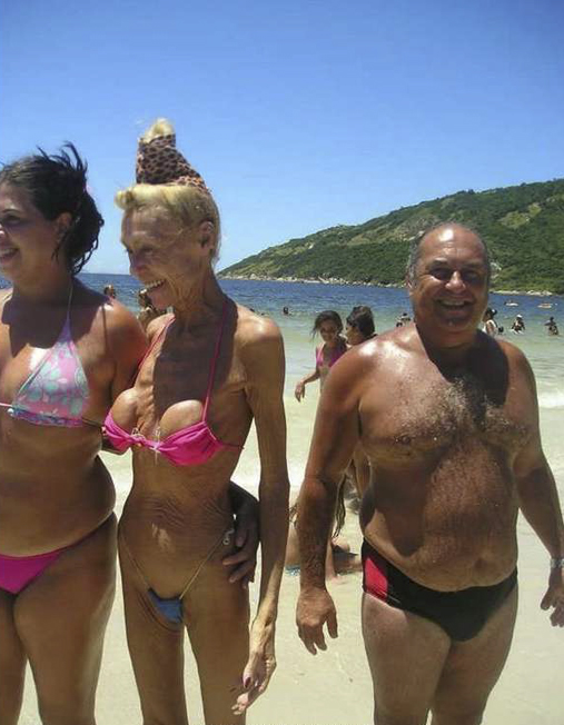 couple examples careful old woman  with breast implants